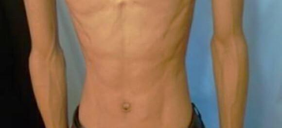 ガリガリの男性の腹筋