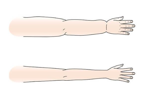 二の腕が太いのはむくみではない