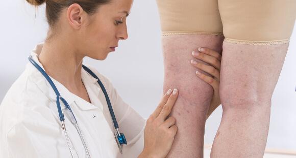 足のむくみは病気の可能性